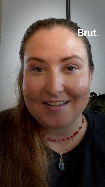 Living with Dermatillomania