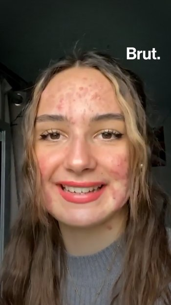 Living with severe acne: Mattéa tells her story